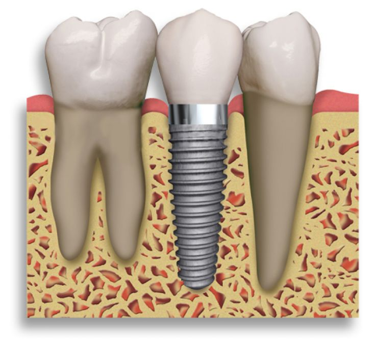 Dental_Implant_2_teeth