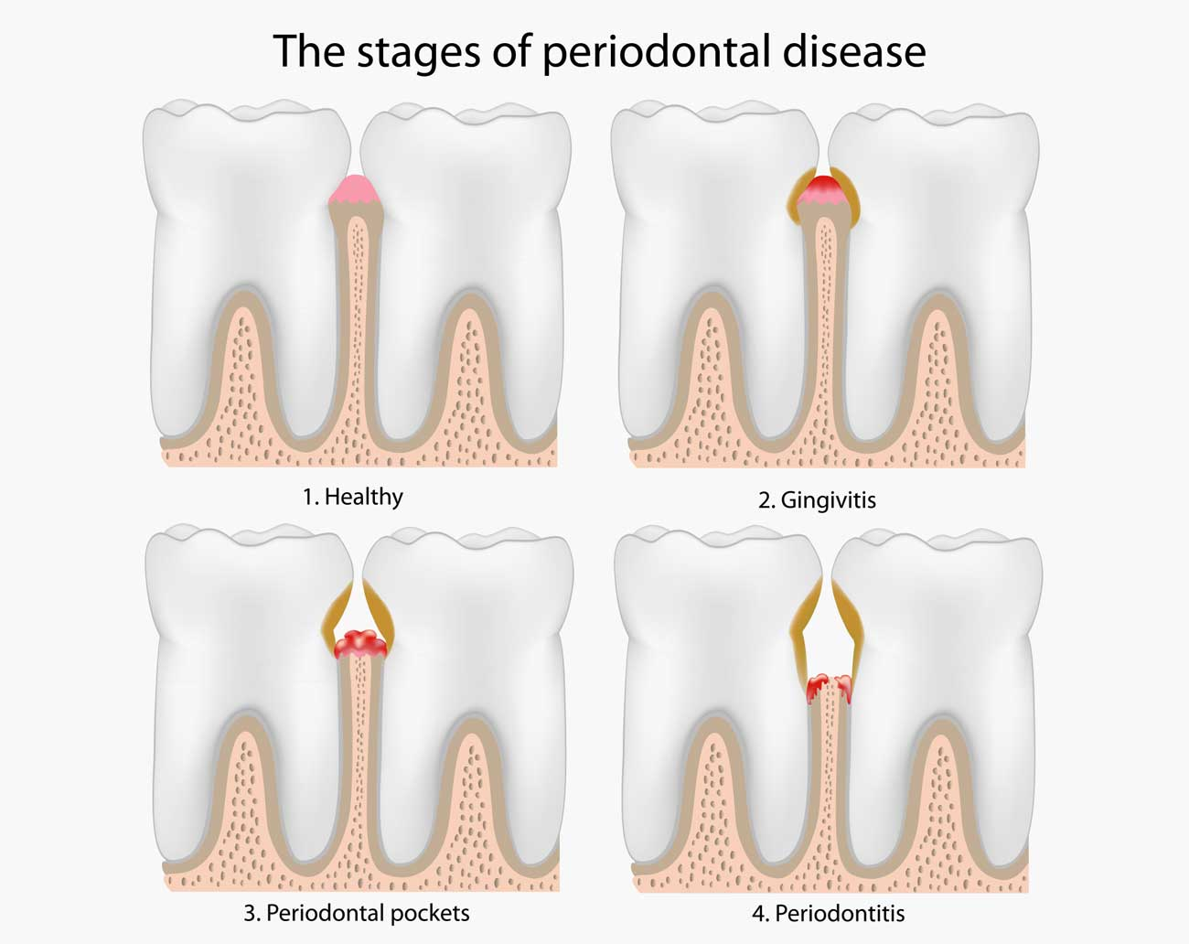 Periodontal Specialist | Gum Disease Specialist | Cotswold ...